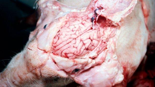 Рисунок 5. Визуально мокрый мозг.