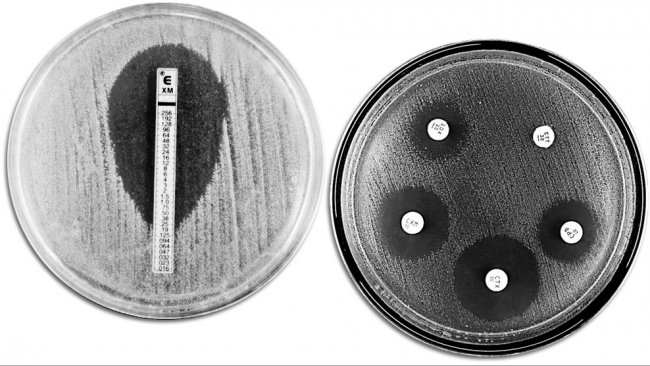 Классические методы для оценки антимикробной резистентности. Рисунок с левой стороны показывает Е-TEST для измерения минимальной концентрации антибиотика, который предотвращает бактериальный рост. Правая сторона показывает тест на определение чувствительности микроорганизмов к антимикробным препаратам с различными зонами подавления роста, вызванными действием антибиотиков.