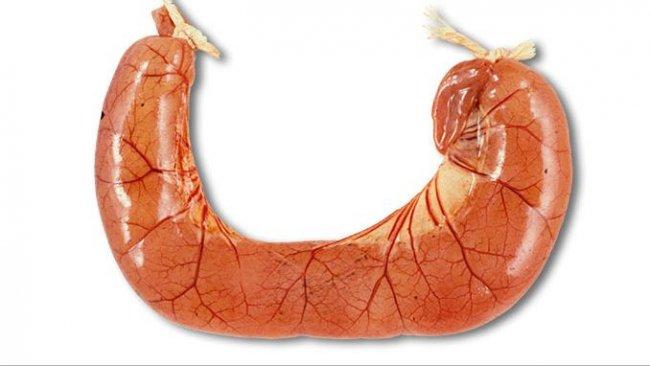 Вскрытие случаев ETEC диареи обычно показывает переполненные петли тонкой кишки заполнены водянистой желтой диареей.