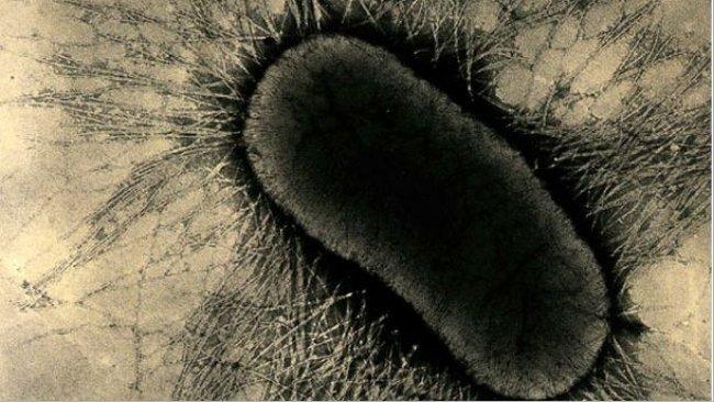 Рис. 1. Факторы прикрепления на ETEC специализированные фимбриальные протеины или жгутики (pilus),они твердо прикрепляются к рецепторам гликопротеида энтероцита на кишечных клетках.