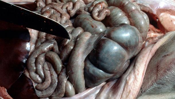 Нити фибрина в брюшной полости.