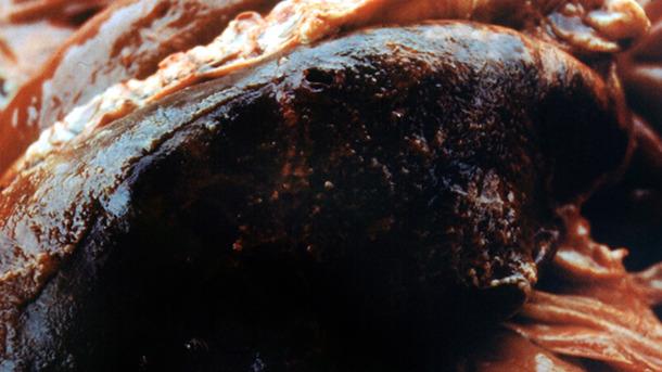 Типичный для острой Асрр фибринозный плеврит, развивающийся на фоне геморрагической пневмонии.