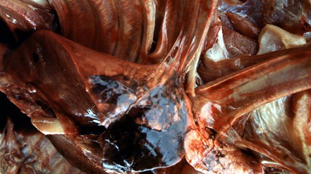 Рис. 1. Фиброзный плеврит в последствие плевропневмонии.