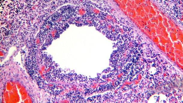 Фото 4. Бронхиолы с десквамацией и некрозом. эпителия дыхательных путей, наряду с выраженной лимфоцитической инфильтрацией собственной пластинки и слизистой оболочки бронхов.