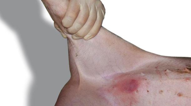 Типичная реакция (покраснение), обнаруженная через 24 часа после внедрения в кожу на животе.