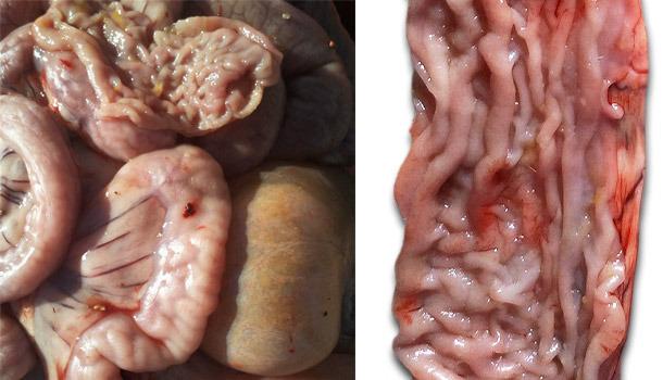 Утолщение слизистой оболочки в дистальной части тонкой кишки