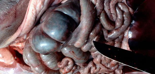 Показаны фибринозные перитонеальные полипы, характерные для острой АПП