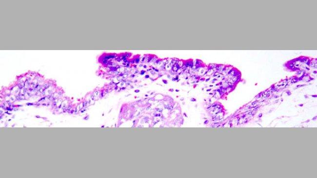 Коагуляционный некроз трофобластов. Гематоксилин - эозиновая окраска